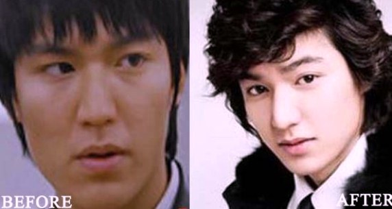 lee min ho plastic surgery before and after pictures