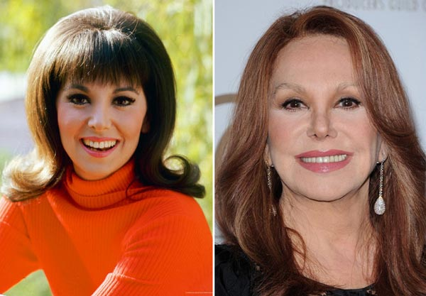 marlo thomas plastic surgery images