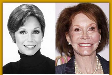 mary tyler moore plastic surgery