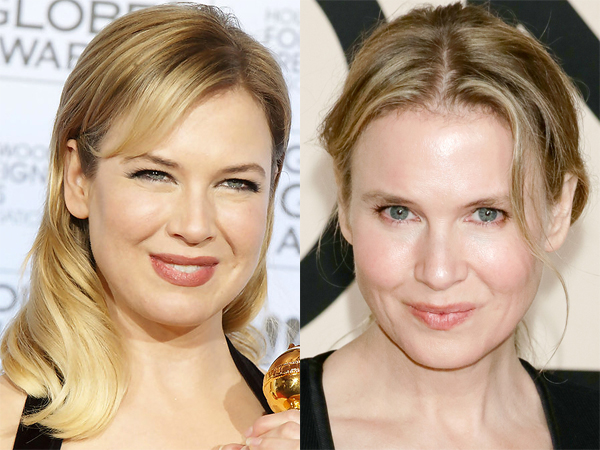 ... com/wp-content/uploads/2014/05/<b>Renee-Zellweger-before-and-after</b>-2.jpg
