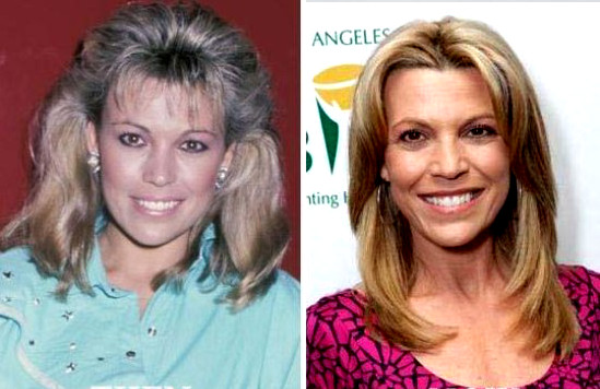 how much plastic surgery has vanna white had