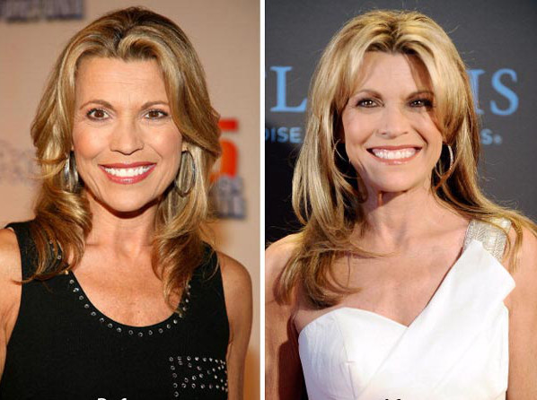 canna white plastic surgery
