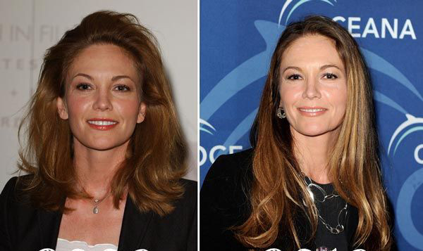 diane lane plastic surgery before and after