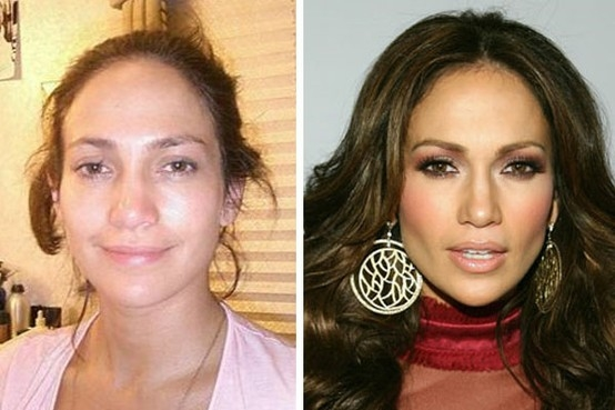 jennifer lopez plastic surgery