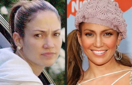 jennifer lopez tummy tuck
