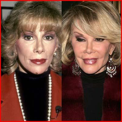 joan rivers plastic surgery photos